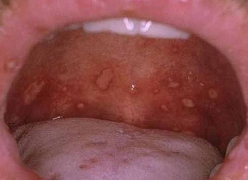OPRYSZCZKOWE ZAPALENIE JAMY USTNEJ Zmiany trudne do róźnicowania z herpanginą. Tutaj mniej skupione. Owrzodzenia o większej średnicy. Często współistnieją zmiany na ustach.